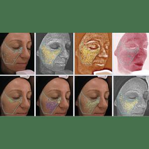 Análisis de piel con Visia Skin