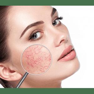Couperose treatment
