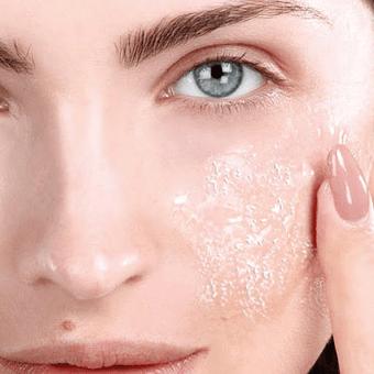 Peeling en Acne