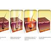 Depiladora Laser 3 En 1 Antiedad Acne Depiladora