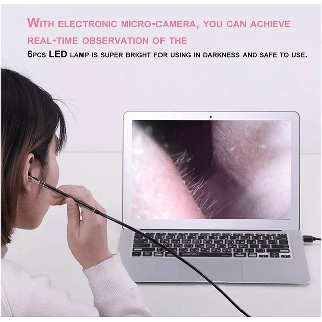 Limpiador De Oídos Con Cámara Usb Hd Endoscopio, Endoscopica